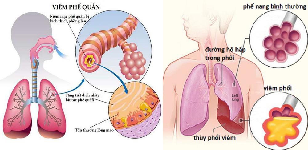 Dùng yến sào có lợi như thế nào đối với hệ hô hấp ? 1