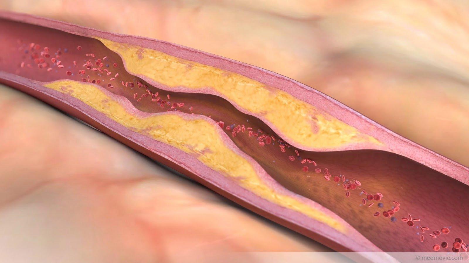 Người bị cholesterol cao có nên uống Nấm Linh Chi Hàn Quốc ? 2