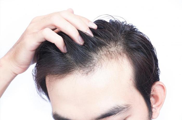 """Nấm Linh Chi """"khắc tinh"""" của chứng rụng tóc 5"""