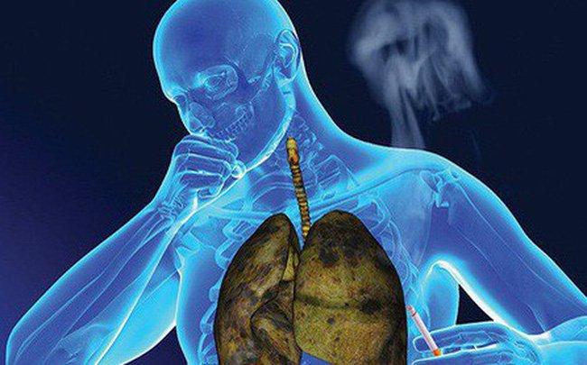 Công dụng của nấm linh chi đối với bệnh ung thư phổi 3