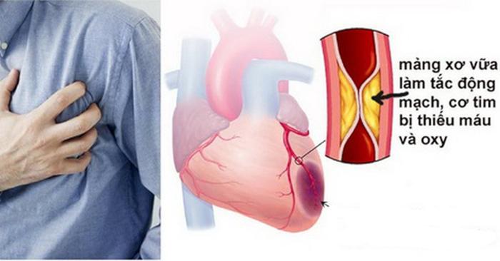 Công dụng của nấm linh chi trong ổn định huyết áp, xơ vữa động mạch 3